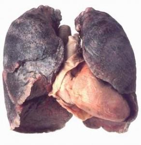 Polmoni di un fumatore