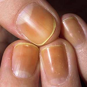 Unghie gialle: i migliori rimedi naturali