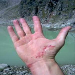 Ferite al mare: come disinfettarle?