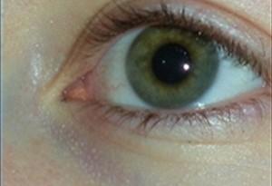 Rimedi naturali per far scomparire le occhiaie
