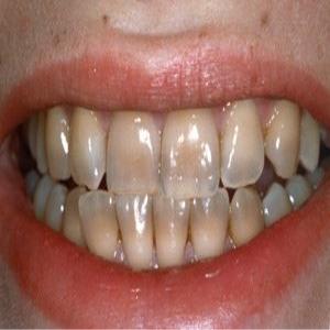 Denti macchiati dalla nicotina: come fare
