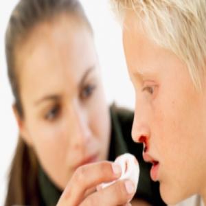 Sangue dal naso: come fermarlo