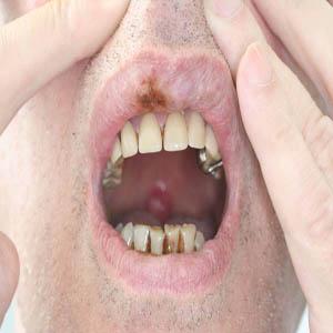 Cavo orale: tutti i danni del fumo
