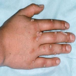 Porri sulle mani: come rimuoverli efficacemente