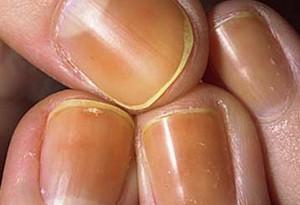 Unghie gialle: rimedi naturali