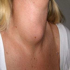 Gozzo tiroideo: sintomi, diagnosi e definizione