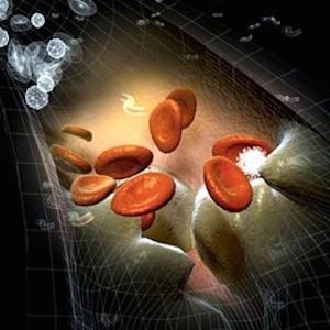 proteina-C-reattiva