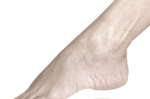 dolore dorso piede
