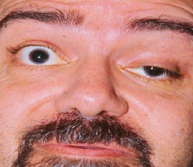miastenia oculare terapia steroidea