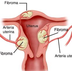 mioma uterino