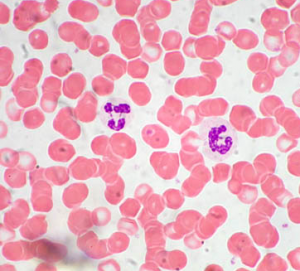 neutrociti