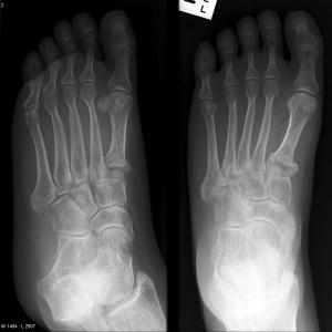 osteogenesi imperfetta