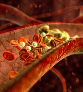 Trombosi di segmentary di un intestino tenue