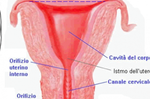 endomietrosi