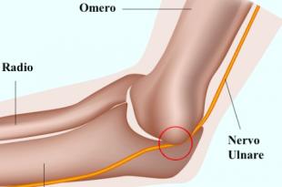 nervo ulnare