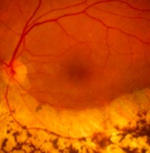 retinite pigmentosa