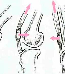 sindrome femoro rotulea