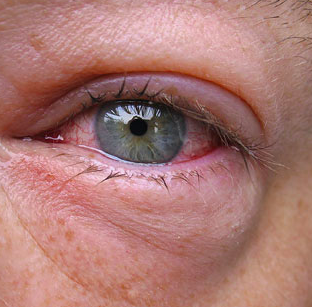 Swollen Eye On Dog Owner After Pet Scratched