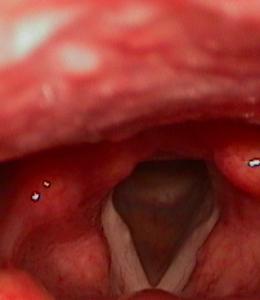 edema corde vocali