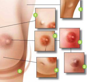 nodulo seno