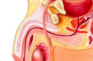 glande infiammato