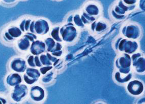 fibrinogeno