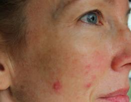 acne menopausa