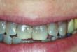 denti neri