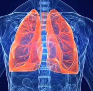 bronchite acuta