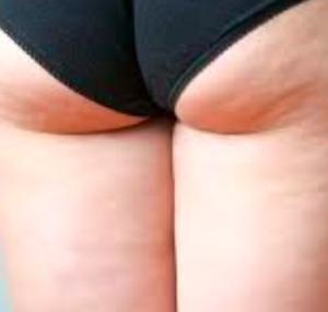 cellulite-gravidanza