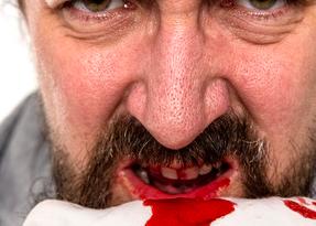 sangue-dalle-gengive