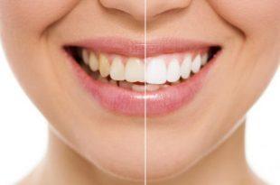 doxiciclina denti