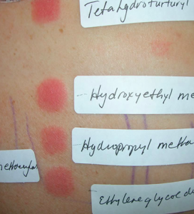 patch test alergia