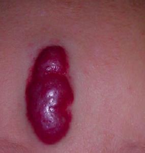 linfangioma capillare