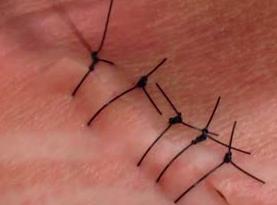 punti sutura
