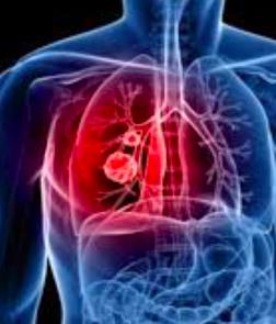 marcatori tumorali polmone