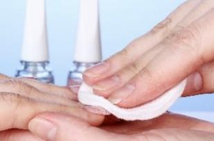 acetone unghie