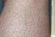 pelle gambe