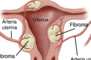 fibroma utero