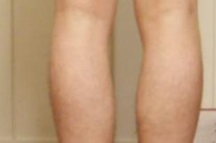 gambe storte