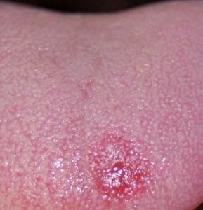 Sifiloma primario: cause, sintomi e cura - Vivere al Meglio