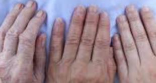 artrite e artrosi