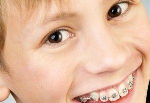 apparecchi ai denti