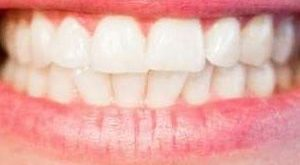 smalto dei denti rovinato e bruxismo