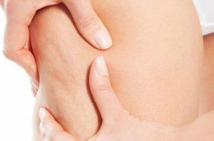 Integratori contro la cellulite, funzionano?