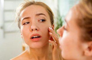 come contrastare la ritenzione idrica al viso