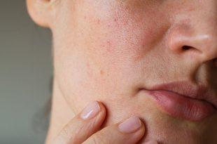 Come trattare la pelle impura