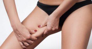 Come funziona l'intervento alle cosce la pelle in eccesso?