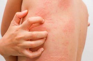 Adulti e allergie
