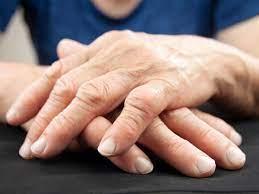 sintomi artrite e artrosi